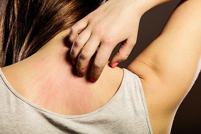 Wat te doen tegen geirriteerde huid